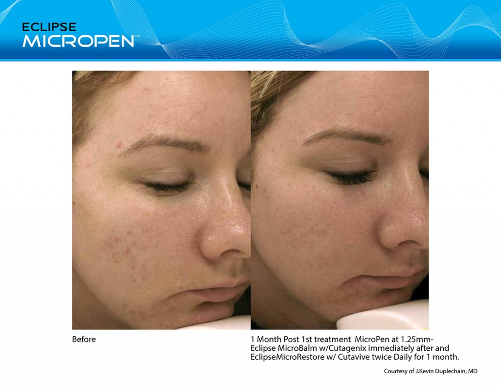 How Soon Can You Wear Makeup After Micro Needling