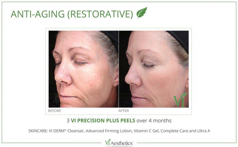 Anti-Aging-Cosmetic-Peel-1