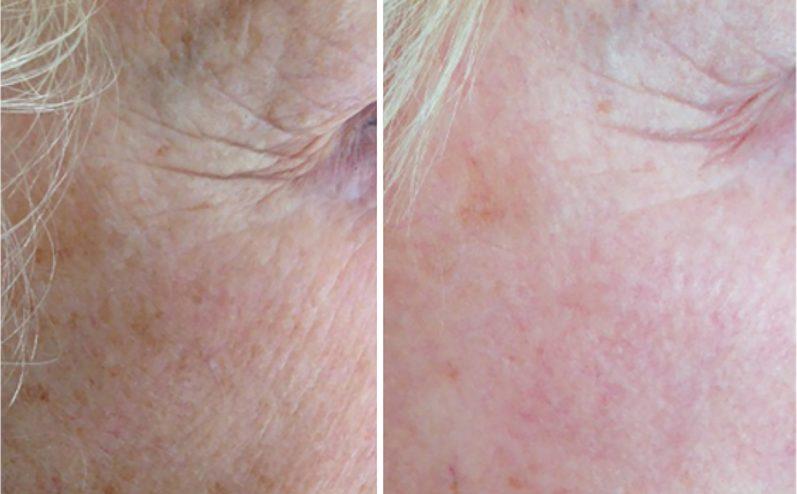 Anti-Aging-Cosmetic-Peel-10
