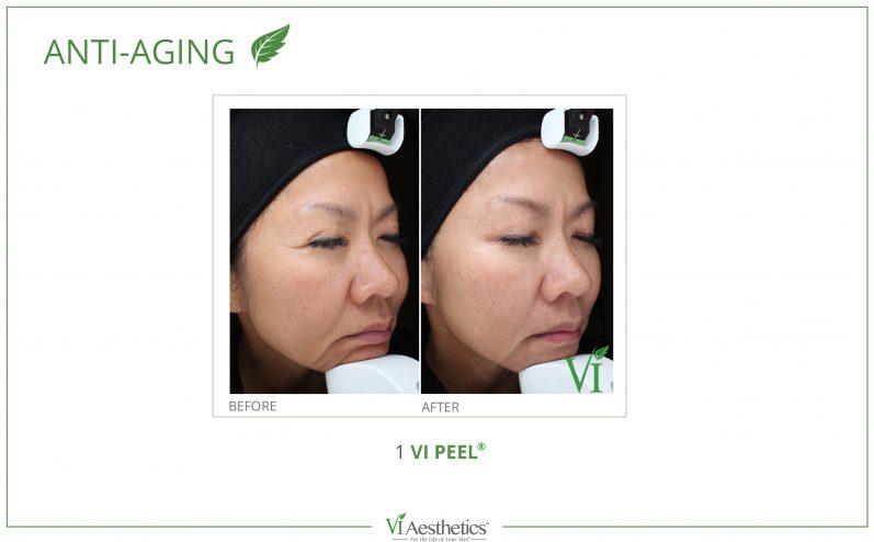Anti-Aging-Cosmetic-Peel-11