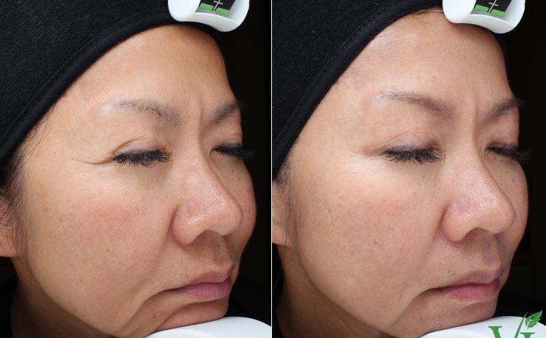 Anti-Aging-Cosmetic-Peel-12