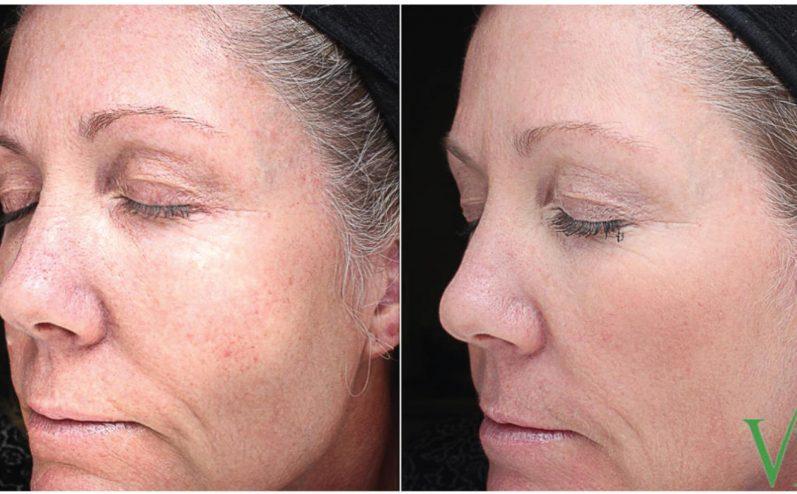 Anti-Aging-Cosmetic-Peel-2