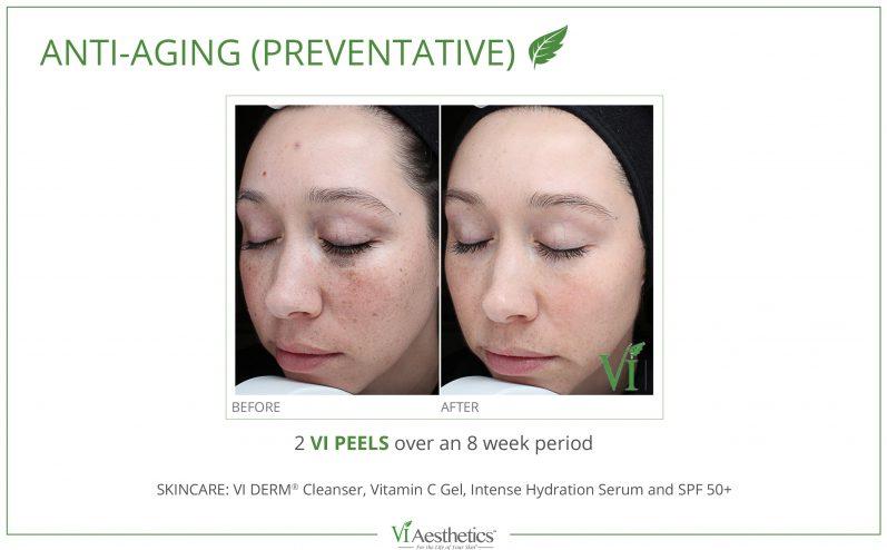 Anti-Aging-Cosmetic-Peel-3