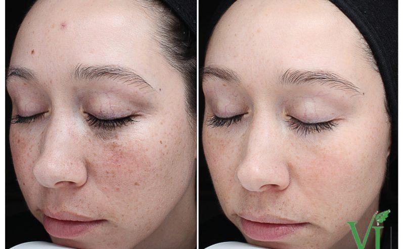 Anti-Aging-Cosmetic-Peel-4