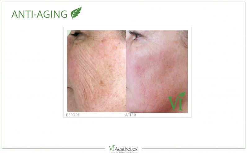 Anti-Aging-Cosmetic-Peel-5