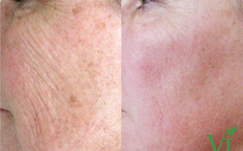 Anti-Aging-Cosmetic-Peel-6