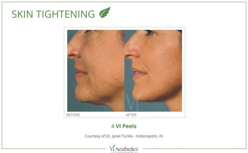 Anti-Aging-Cosmetic-Peel-7