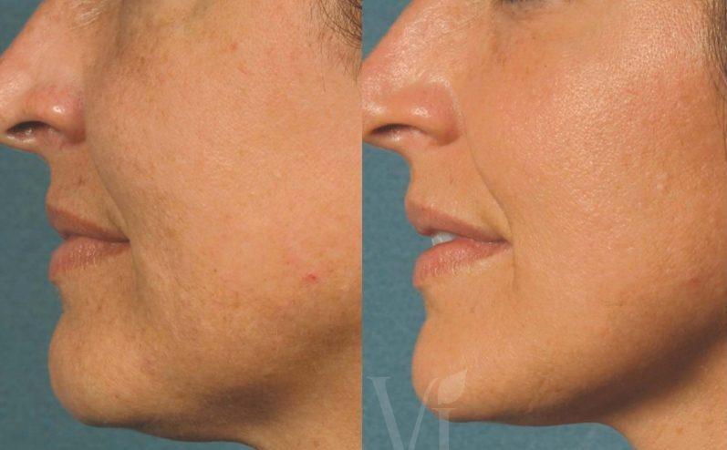 Anti-Aging-Cosmetic-Peel-8