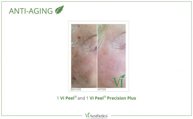 Anti-Aging-Cosmetic-Peel-9
