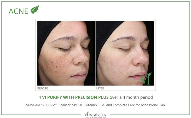 Acne-Treatment-1