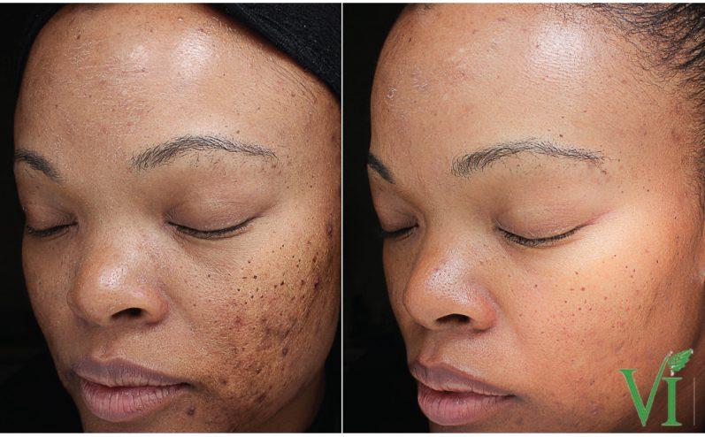 Acne-Treatment-10