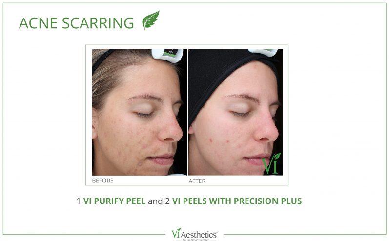 Acne-Treatment-11