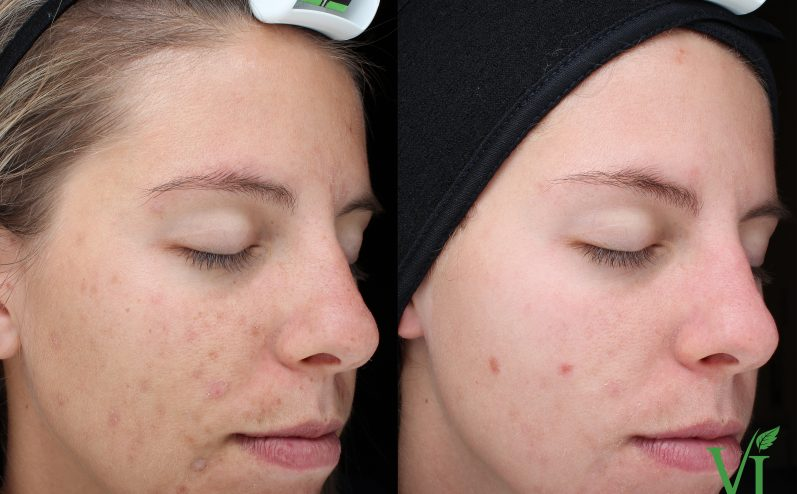 Acne-Treatment-12