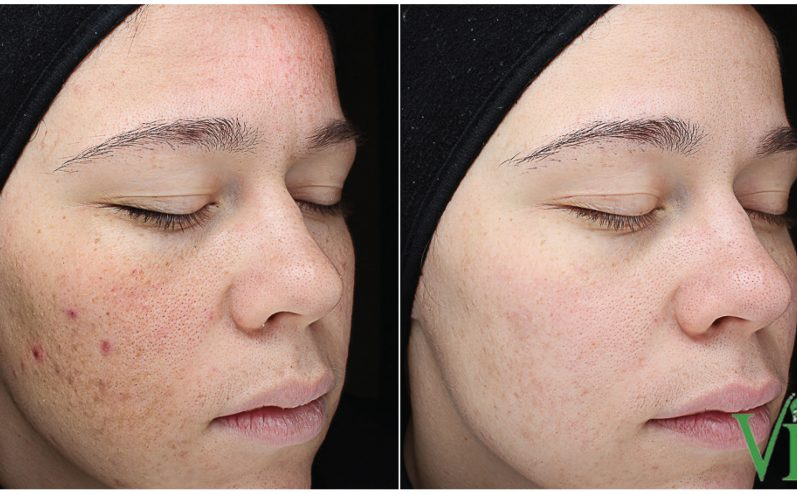 Acne-Treatment-2