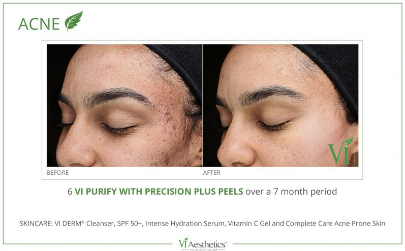 Acne-Treatment-3