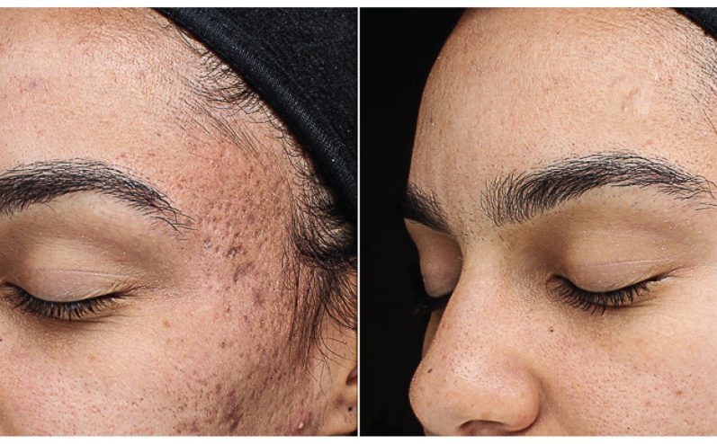 Acne-Treatment-4