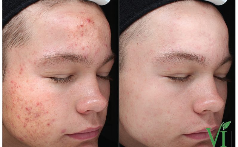 Acne-Treatment-6