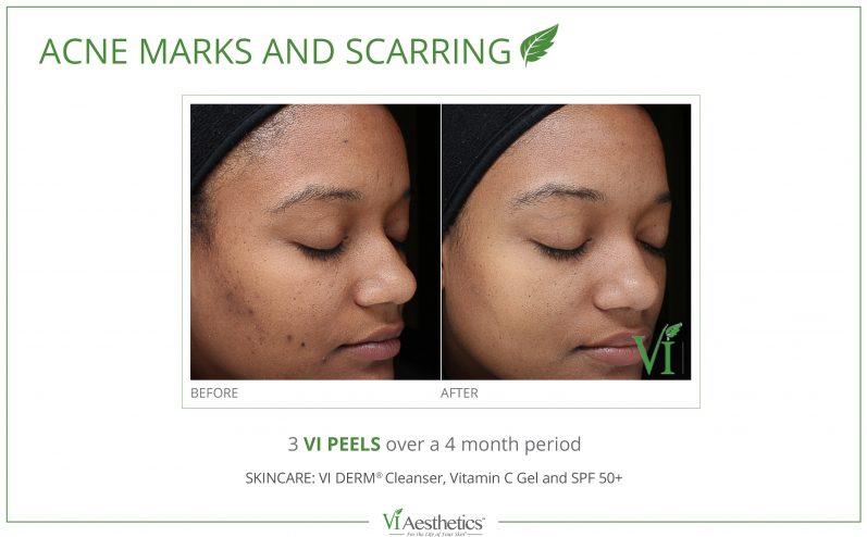 Acne-Treatment-7