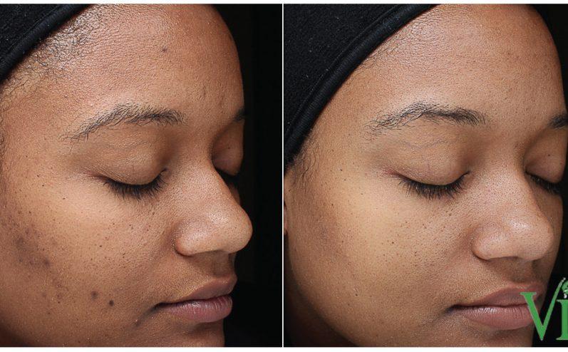 Acne-Treatment-8