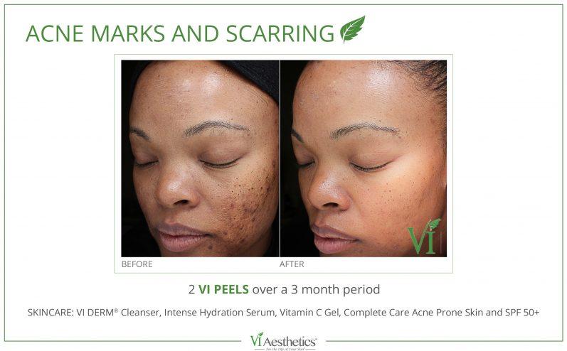 Acne-Treatment-9
