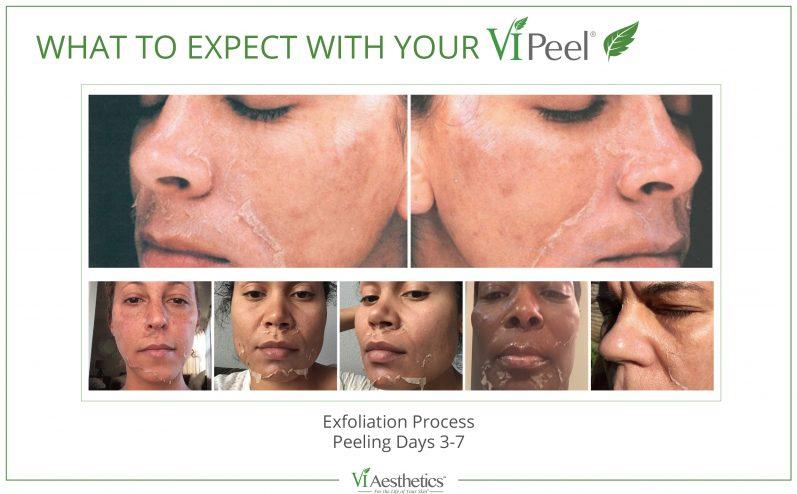 Cosmetic-Peel-1
