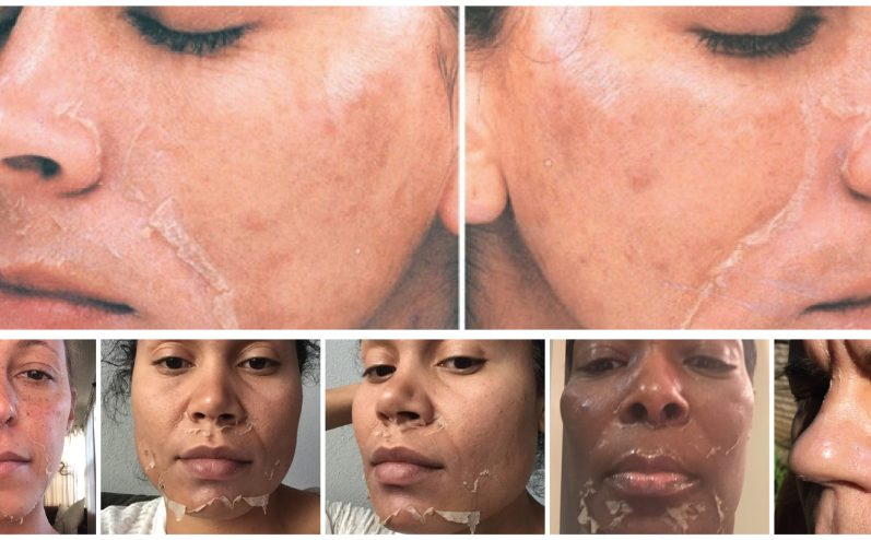 Cosmetic-Peel-2