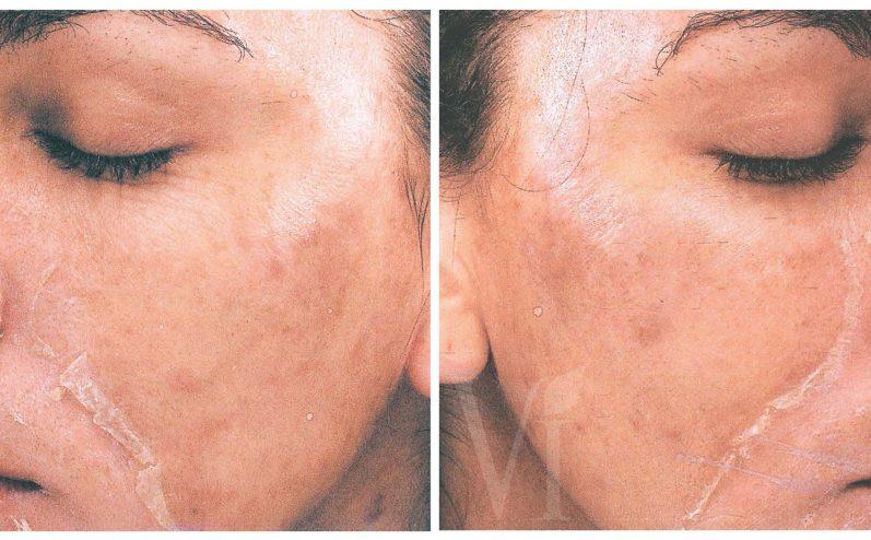 Cosmetic-Peel-3