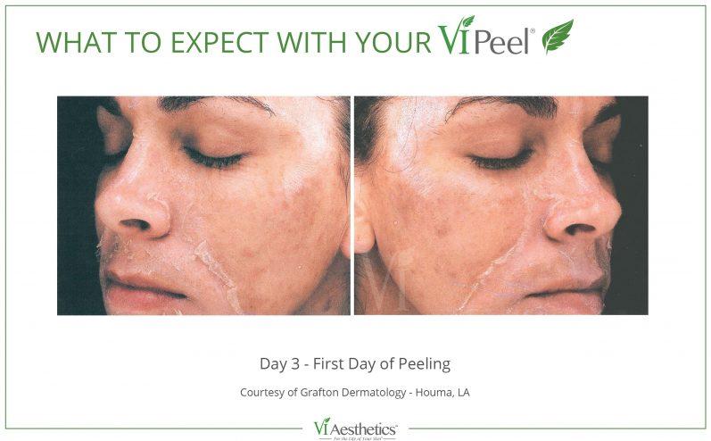 Cosmetic-Peel-4