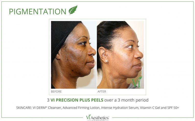 Pigmentation-Cosmetic-Peel-1
