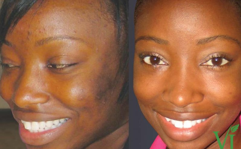 Pigmentation-Cosmetic-Peel-12