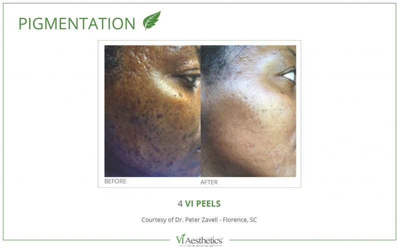 Pigmentation-Cosmetic-Peel-13