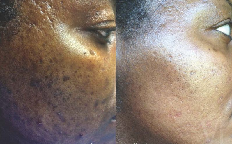 Pigmentation-Cosmetic-Peel-14