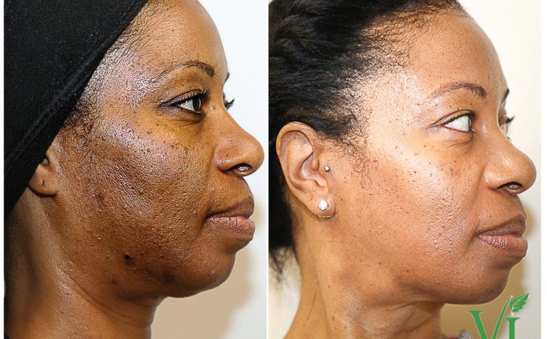 Pigmentation-Cosmetic-Peel-2