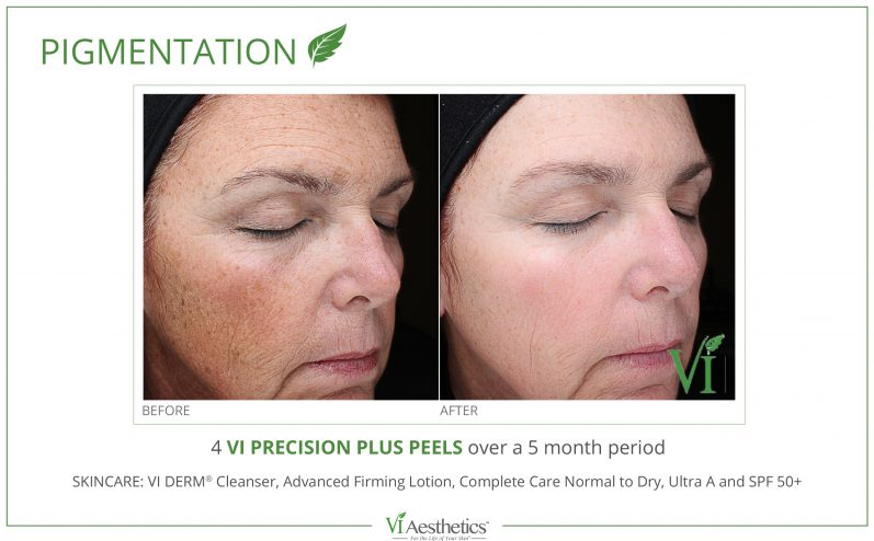 Pigmentation-Cosmetic-Peel-3