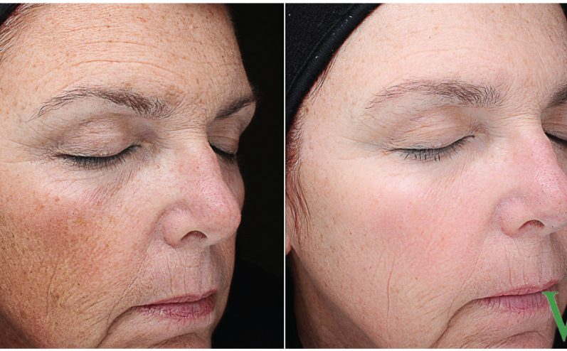Pigmentation-Cosmetic-Peel-4