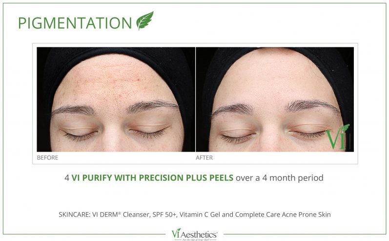 Pigmentation-Cosmetic-Peel-5