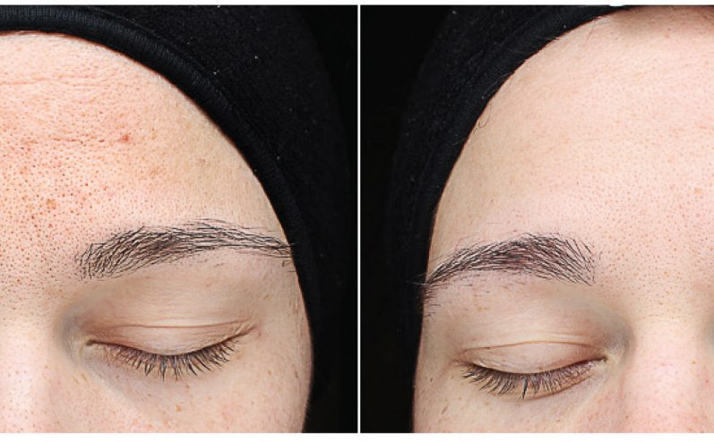 Pigmentation-Cosmetic-Peel-6