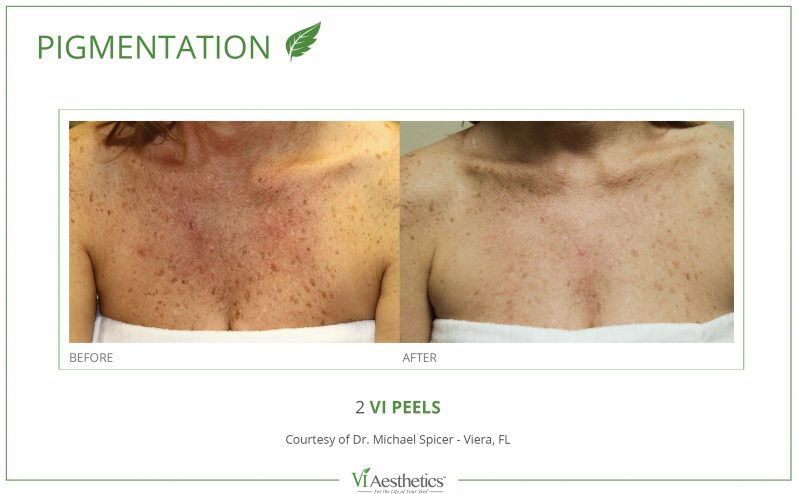 Pigmentation-Cosmetic-Peel-7