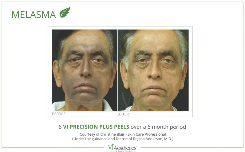Pigmentation-Cosmetic-Peel-9