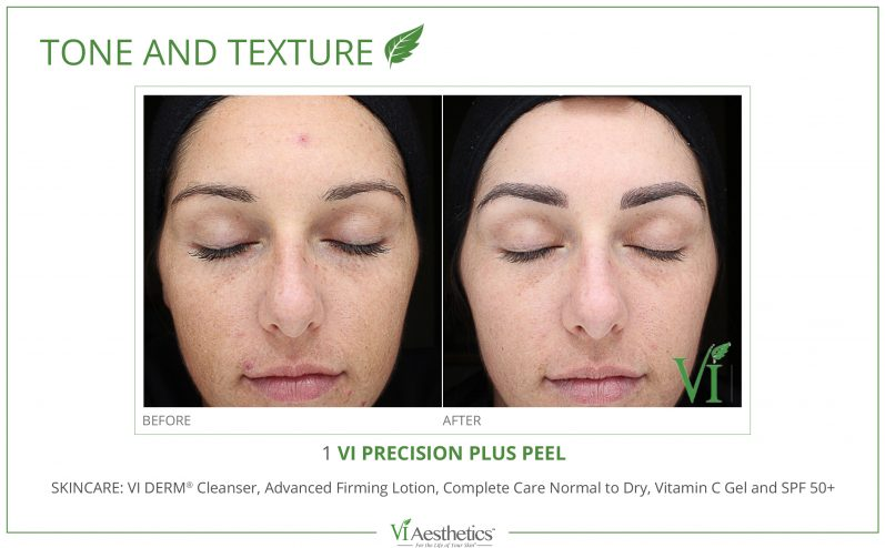 Skin-Tone-and-Texture-Cosmetic-Peel-1
