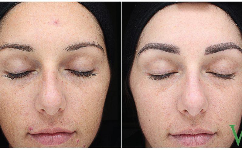 Skin-Tone-and-Texture-Cosmetic-Peel-2